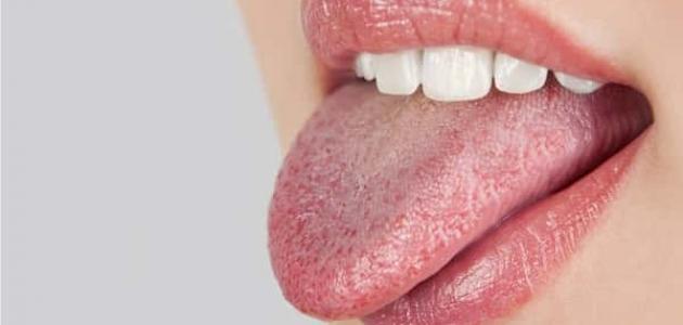 Photo of أسباب التهاب اللسان وتشققه