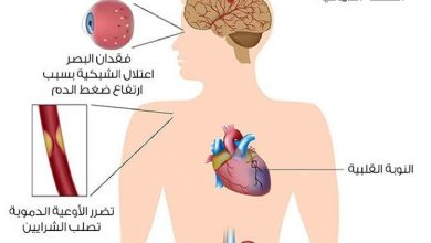 Photo of تشخيص ارتفاع ضغط الدم