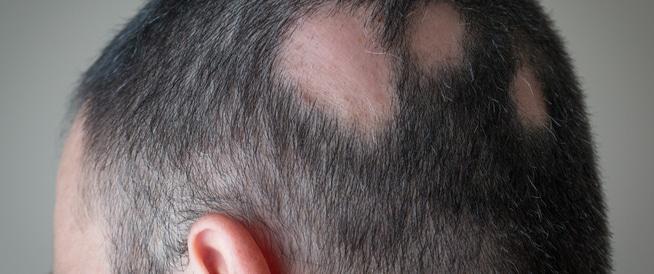 Photo of علاج مرض الثعلبة بالثوم