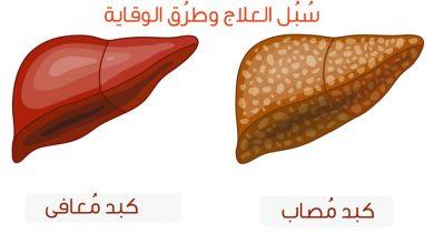 Photo of دهون الكبد واضرارها