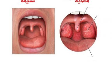 Photo of علاج التهاب اللوزتين للاطفال
