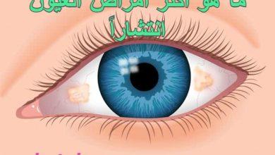 Photo of ما هو أكثر أمراض العيون انتشاراً