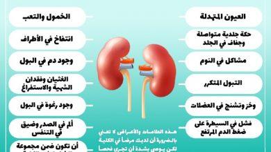 Photo of أمراض الكلى واعراضها