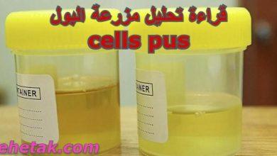 Photo of قراءة تحليل مزرعة البول cells pus