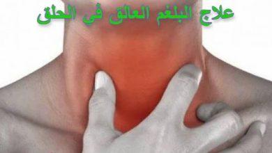 Photo of علاج البلغم العالق في الحلق
