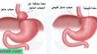 Photo of علاج فتق الحجاب الحاجز بالأعشاب