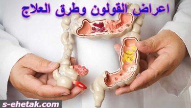 Photo of اعراض القولون وطرق العلاج
