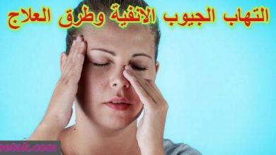 Photo of التهاب الجيوب الانفية وطرق العلاج