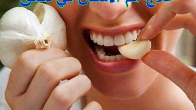 Photo of علاج ألم الأسنان في دقائق