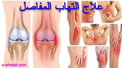 Photo of علاج التهاب المفاصل والعضلات