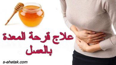 Photo of علاج قرحة المعدة بالعسل