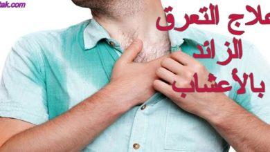 Photo of علاج التعرق الزائد بالأعشاب