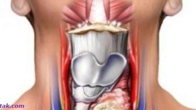 Photo of اعراض الغدة الدرقية وطرق العلاج
