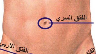 Photo of علاج الفتق بدون جراحة