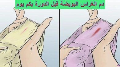 Photo of دم انغراس البويضة قبل الدورة بكم يوم
