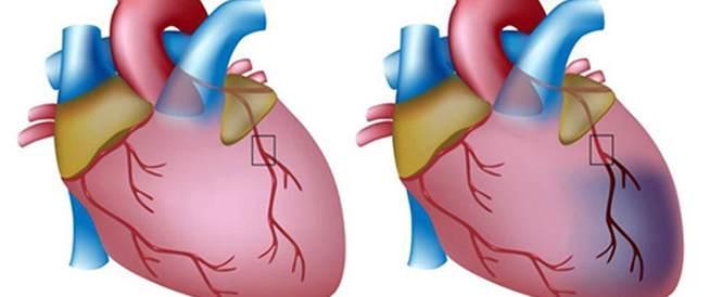 اعراض الذبحة الصدرية