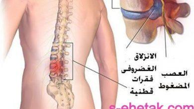 Photo of علاج الانزلاق الغضروفي بدون جراحة