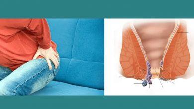 Photo of علاج البواسير بالطرق المختلفة