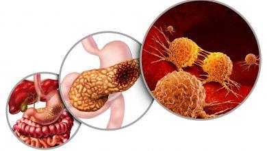 Photo of اعراض سرطان البنكرياس