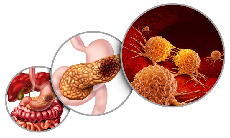 اعراض سرطان البنكرياس