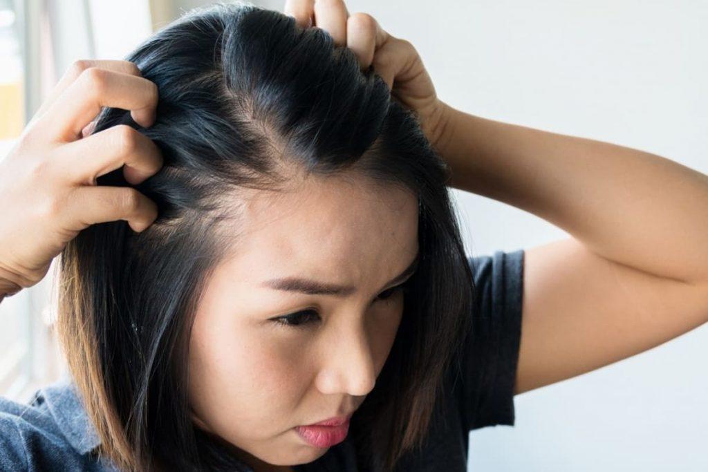 زراعة الشعر في مقدمة الرأس للنساء