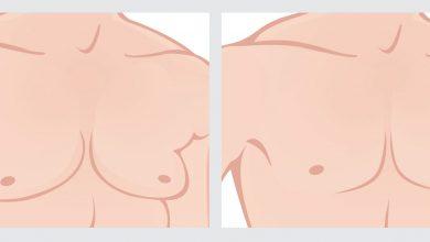Photo of تكلفة عملية تصغير الثدي للرجال في مصر